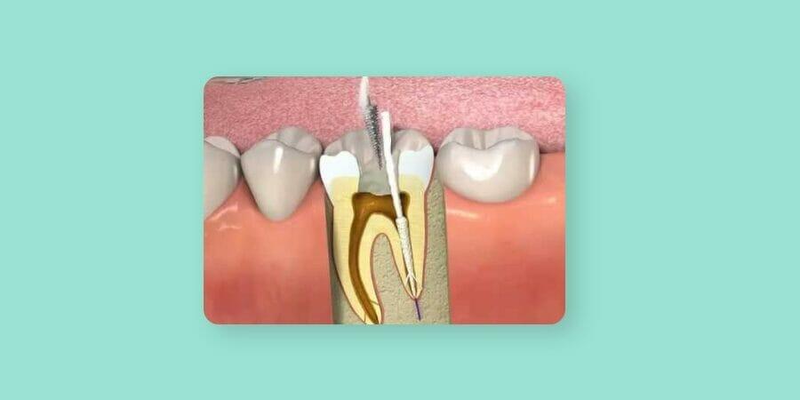 απονεύρωση δοντιού