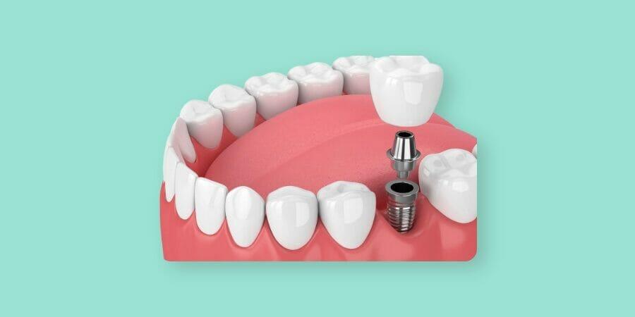 εμφυτεύματα δοντιών
